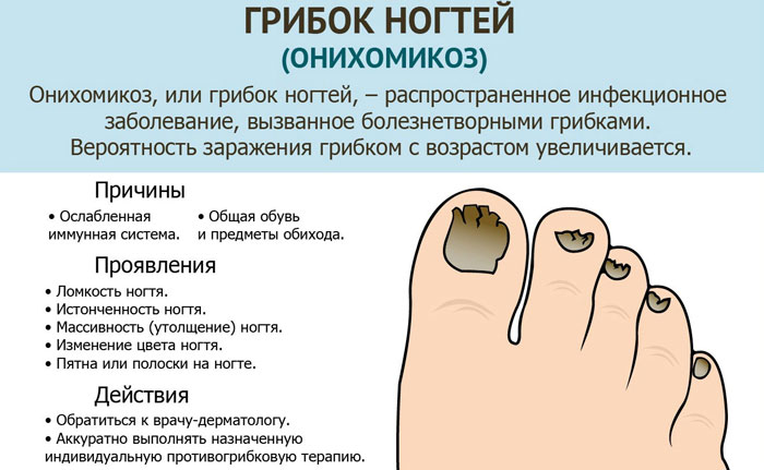 gribok-nogtey-narodnimi-sredstvami-lechenie